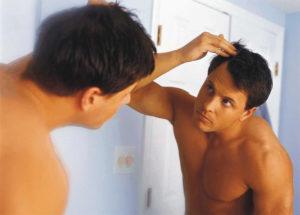 Причины проявления перхоти у мужчин