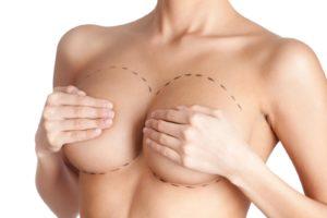 Операции по увеличению грудей отзывы