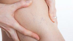 Чем опасен варикоз во время беременности, и можно ли его избежать?
