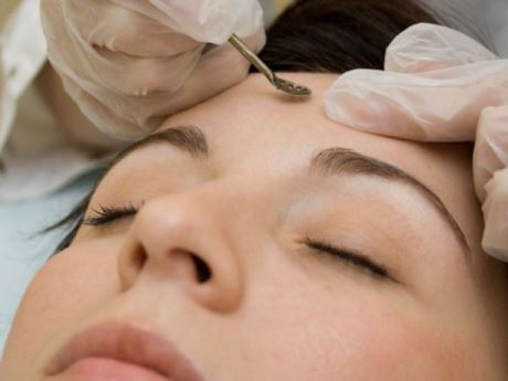 Механическая чистка кожи лица — что это такое?