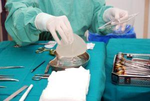 Пластическая операция после мастэктомии