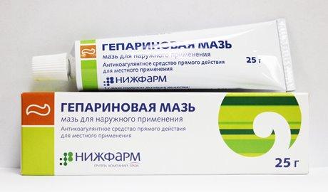 Лечение варикозной болезни органов малого таза и матки при беременности