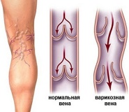 Варикозное расширение вен на ногах при беременности: симптомы и лечение