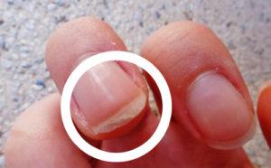 Ломкость и отслаивание ногтей на руках: как вылечить и укрепить