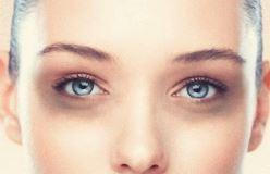 Если появились синяки под глазами: причины и лечение