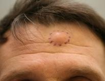 Жировики на теле и лице: причины и как избавиться