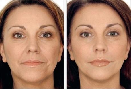 Отзывы о биоревитализации лица (фото до и после)