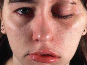 Последствия применения ботокса для лица
