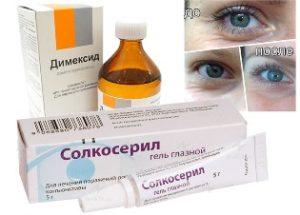 Избавляемся от морщин средствами из аптеки: Димексид и Солкосерил