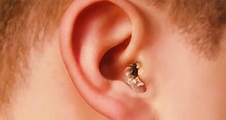 Симптомы себореи в ушах, фото