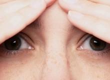 Перхоть на бровях: причины и лечение