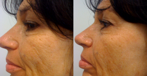 воспалительные процессы, происходящие в организме. Фото до и после: отзывы женщин