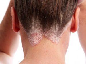 Что за болезнь псориаз, и как можно излечиться от нее?