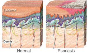 Почему возникает псориаз