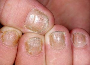 Отличие лечения псориаза на ногтях, на голове, лице и теле