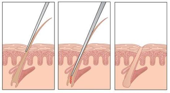 Как происходит процедура на лице, ногах, зоне бикини и подмышек