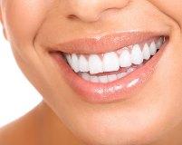 7 лучших способов быстро отбелить зубы в домашних условиях