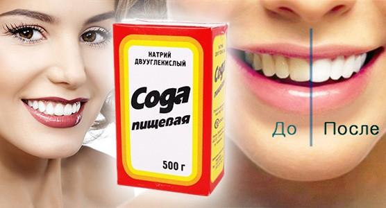 Улучшение цвета зубной эмали содой
