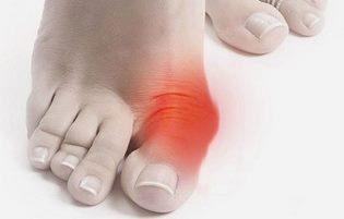 Причины появления косточек на ногах, и методы избавления от них