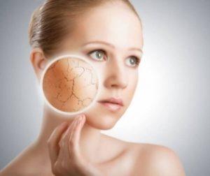 Шелушение на коже лица: причины образования и методы избавления от него