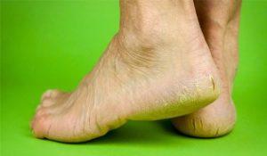 Что способствует появлению трещин на пятках, и методы лечения заболевания