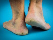 Трещины на пятках: причины, лечение (кремы и мази), народные средства