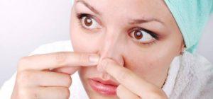 способы удаления угрей на носу