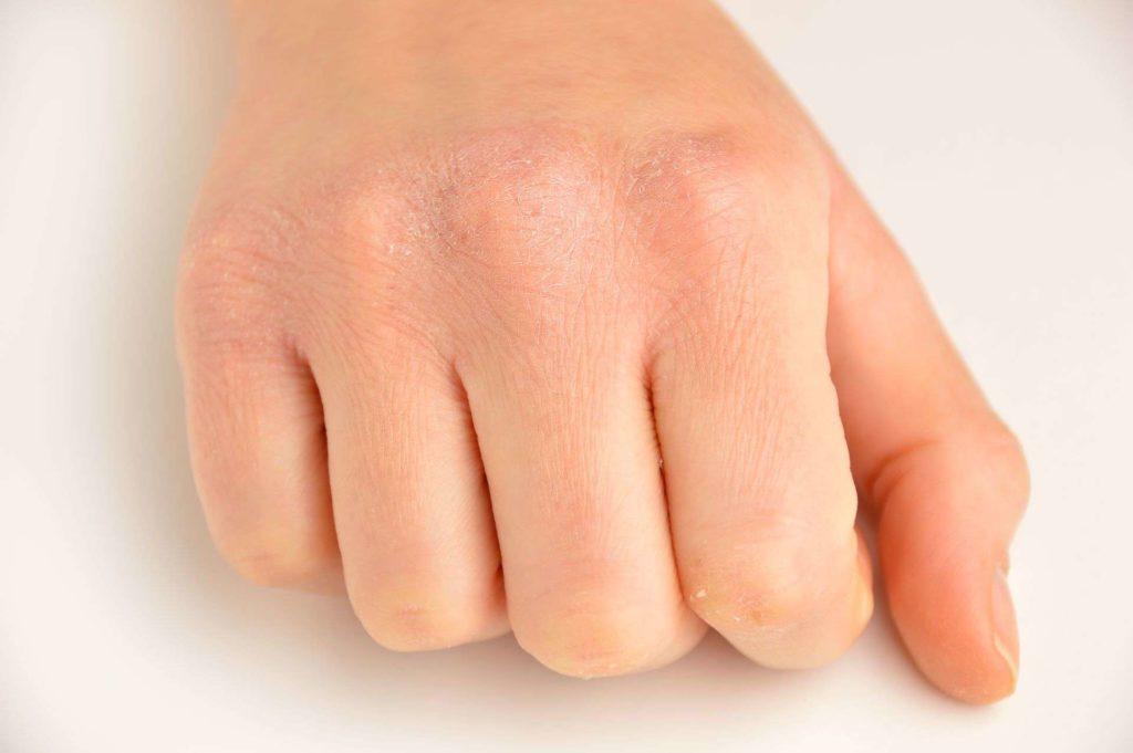 сухая кожа рук и трещины на пальцах