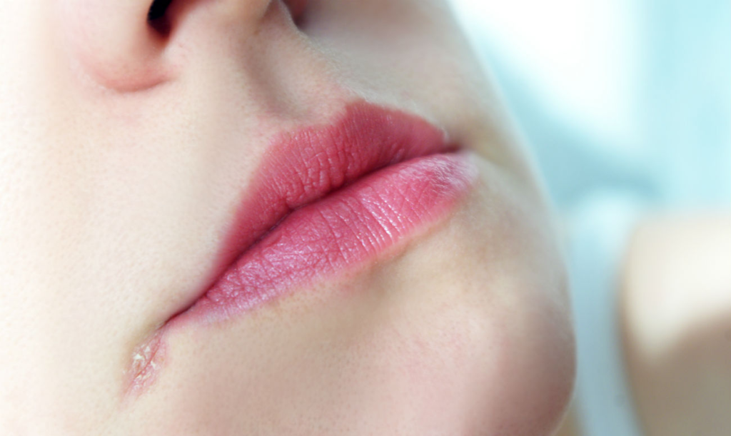заеда в уголке рта лечение