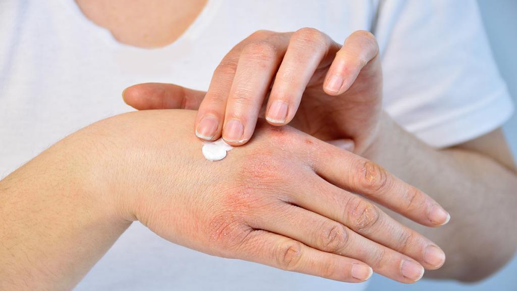 Цыпки на руках лечение