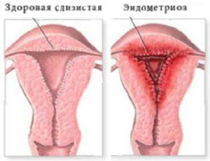 Причины возникновения эндомертиоза
