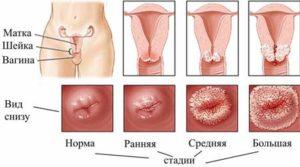 Симптомы эрозии шейки матки у беременных