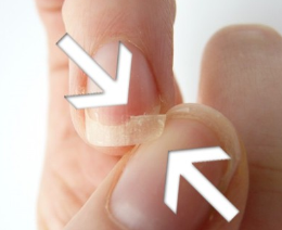 Почему слоятся и ломаются ногти на руках - основные причины