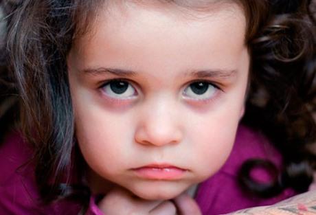 Причины синяков под глазами у ребенка