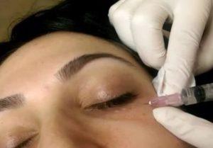 Чем лечить темные круги под глазами?