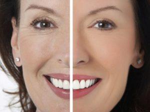 Как замаскировать носогубные складки с помощью макияжа