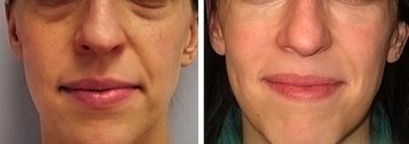 Отзывы о применении филлеров в носогубные складки (фото до и после)