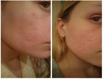 Фракционное омоложение кожи лица: фото до и после