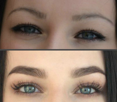 Отзывы по фото: до и после