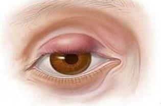 Лечение ячменя на глазу домашними и аптечными средствами