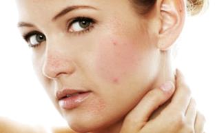 Угревая сыпь на спине и лице: из-за чего возникает, как лечить дома