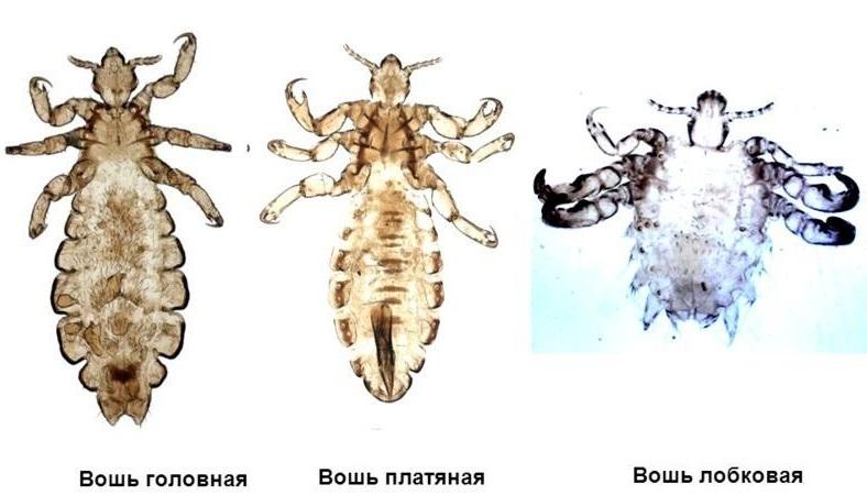 Основные виды вшей