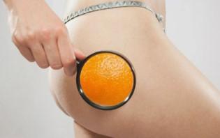 Убираем целлюлит на ногах и попе: ищем причины и подбираем методы избавления от апельсиновой корки
