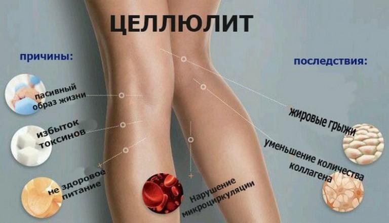 Причины появления целлюлита на теле