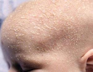 Шелушение кожи головы у новорождённого и взрослого ребенка