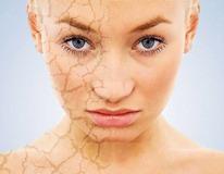 5 причин - почему шелушится кожа на лице и что делать