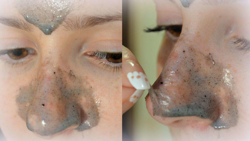 как выдавить угри на носу