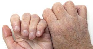 избавиться от сухой кожи рук