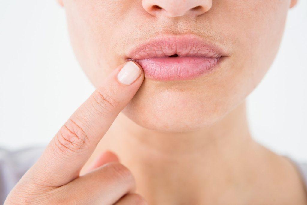 заеды в уголках губ причины и лечение