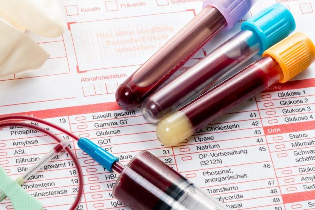 Цена на общий анализ крови